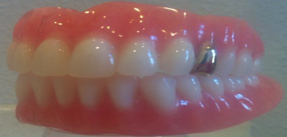 Berlanga Dentures: Expert Denturists serving Western WA for 24 years